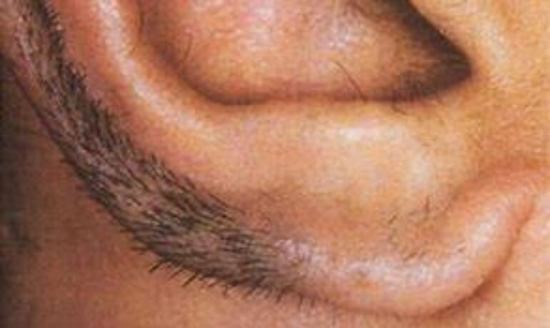 Ear and nose-hair trimmers